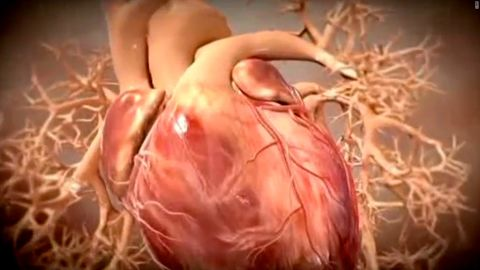 What causes a heart attack? Cholesterol is a big factor