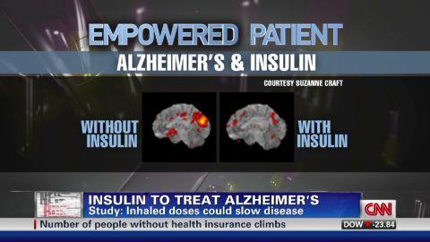 nr cohen insulin alzheimers_00010523
