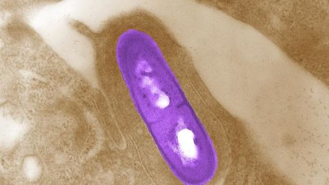 This is a photo from the CDC of the Listeria bacteria.