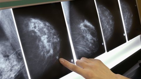 Women with annual mammograms are more likely to experience anxiety from false-positive results.