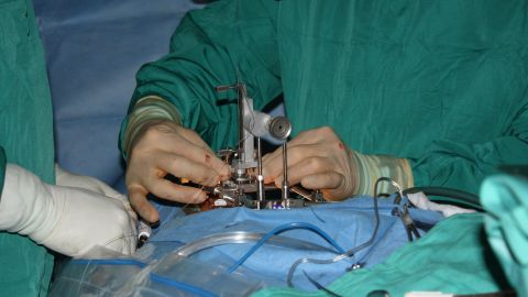 Dr. Nicholas Boulis adjusts the device that injects stem cells into the cervical area of the spinal cord.