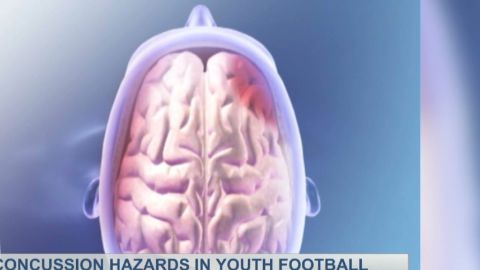 dr drew concussion hazards teens_00010916