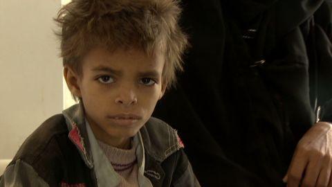 jamjoom yemen malnutrition_00002320