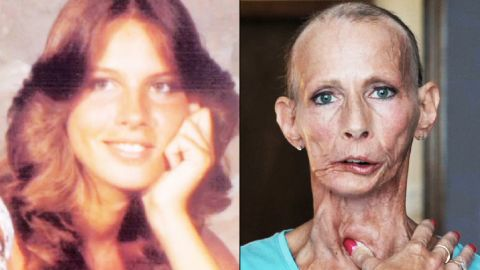 Terrie Hall, left, at age 17, when she started smoking regularly. Now 51, right, Hall is battling tobacco-related illness.