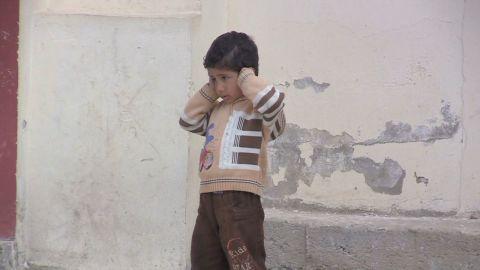 pkg damon syria children wounded_00011628