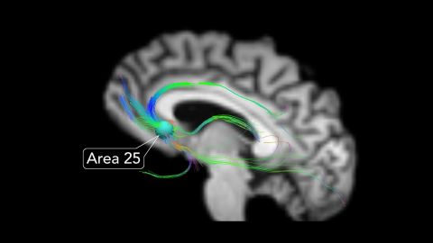 Area 25 is the junction of all brain circuits that control our moods, according to neurologist Dr. Helen Mayberg.