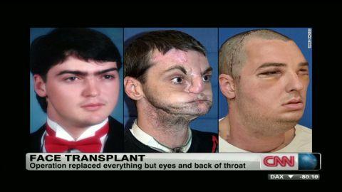 cnni.usa.richard.norris.face.transplant_00013512