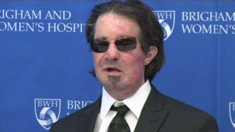 sot face transplant anniversary whdh_00000917
