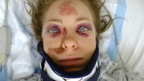 New York City artist Michelle Matson was hospitalized in 2010 after being hit by a speeding car as she rode a bicycle in Brooklyn.