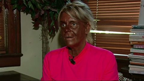 WCBS mom tanning daughter_00000021