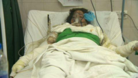 pkg.sayah.pakistan.male.acid.attack.victims_00015322