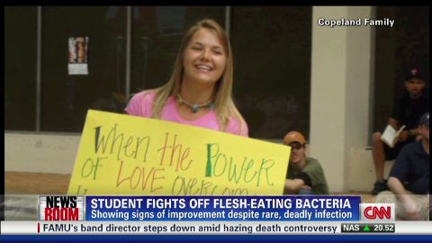 exp Flesh-Eating Bacteria Could Claim Student's Hands, Remaining Foot_00002001