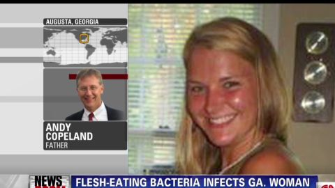 nr.bpr.flesh eating virus victim father_00015929