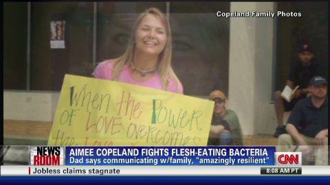 exp elizabeth cohen flesh eating bacteria_00002001