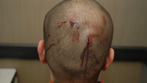 """Zimmerman says he shot Martin in self-defense. Martin's attorneys say he was shot and killed """"in cold blood."""""""