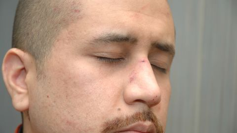 """According to a fire department report, Zimmerman had """"abrasions to his forehead,"""" """"bleeding/tenderness to his nose"""" and a """"small laceration to the back of his head"""" when he was treated at the scene."""