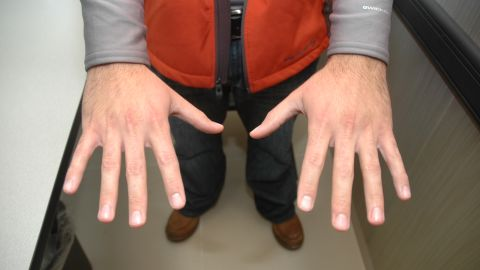 In a photo released by the Sanford Police Department, Zimmerman's hands appear to be unmarked.