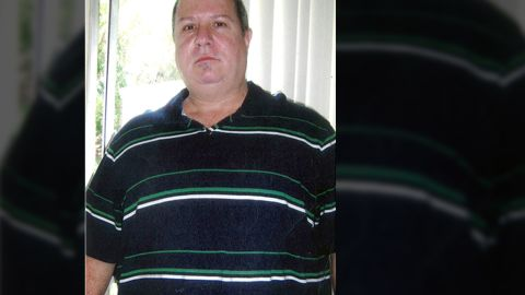 """Before bariatric surgery, Mike Cianciullo weighed 321 pounds. At 5'7"""", he had a BMI of 50."""