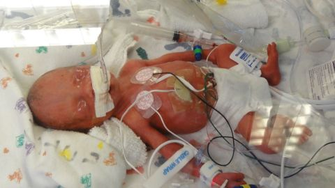 The first girl, Marcie Jane Jones, was born at 10:03 a.m. She weighed exactly 2 pounds.