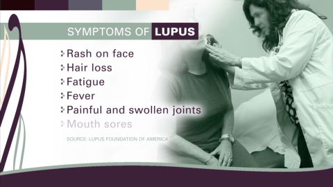 Living with lupus _00004822