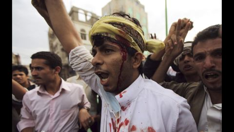 A protester shouts after sustaining injuries in a confrontation with riot police who fired tear gas outside the U.S. Embassy in Sanaa on Thursday.
