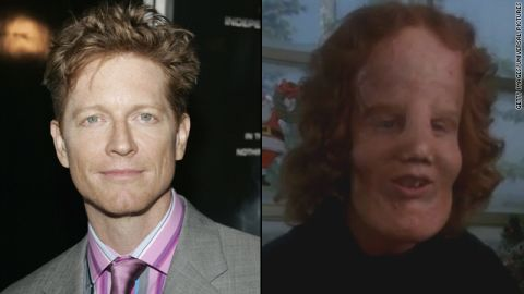 """The makeover for Eric Stoltz in 1985's """"Mask"""" was astounding as Stoltz portrayed Rocky Dennis, a boy trying to live a normal life with the disorder lionitis. The transformation picked up an Oscar for best makeup."""