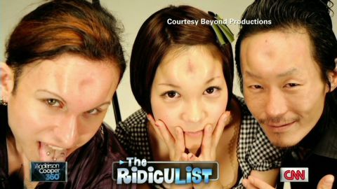 AC ridiculist bagel shapes injected into foreheads_00015113