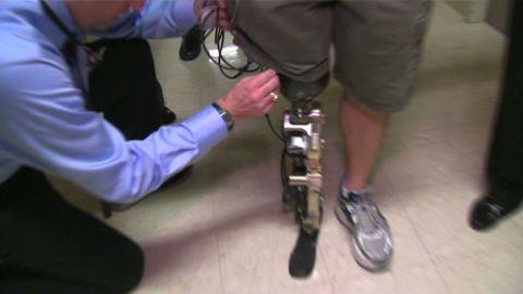 dnt first bionic leg _00002624