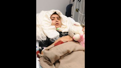 Malala recovers after receiving treatment at Queen Elizabeth Hospital in Birmingham on October 19, 2012. Doctors covered the large hole in her skull with a titanium plate. The teen suffered no major brain or nerve damage, and she even kept the piece of her skull that was removed as a souvenir of her fight.