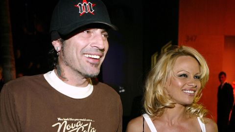 """Their divorce in 1998 was messy and the custody battle over their two sons was even more so. At one point during the custody trial, Anderson said she had <a href=""""http://articles.cnn.com/2002-03-20/entertainment/pamela.anderson.hepatitis_1_liver-disease-hepatitis-viral-infection?_s=PM:SHOWBIZ"""" target=""""_blank"""">contracted hepatitis C</a> from sharing an infected tattoo needle with Lee. In 2002 they decided to share custody."""