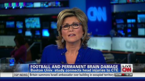 exp Study shows stages of brain damage, CTE_00003607