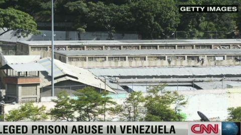 pkg romo venezuela prison abuse_00001208