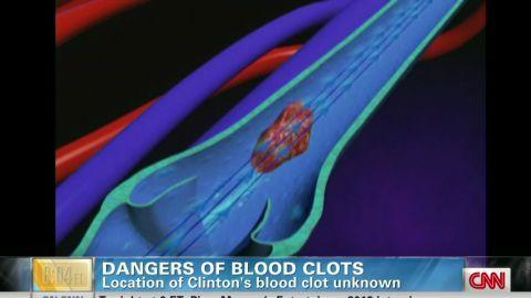 early gupta blood clot dangers_00010714