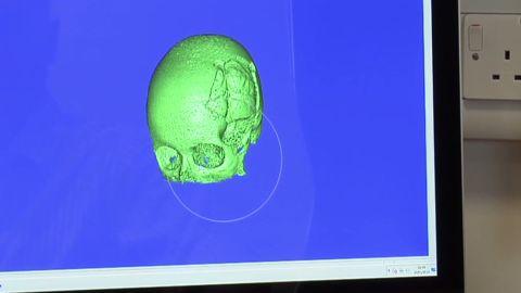 malala 3D imaging skull hospital _00001430.jpg