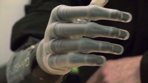 make create innovate i limb prosthetics will i am britney spears_00024822.jpg