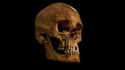The skull of Richard III.