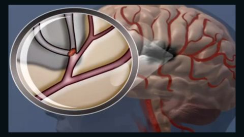 In an ischemic stroke, a blockage in a blood vessel stops essential oxygen and nutrients from reaching the brain.