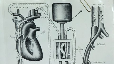 Vincent Gott's knack for illustrating heart procedures got him noticed by a preeminent heart surgeons.
