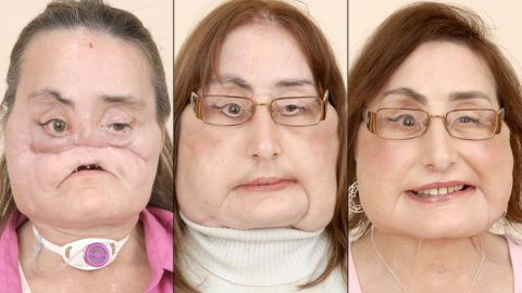 """The first partial face transplant was done in Amiens, France, in 2005. Five years later, <a href=""""http://www.cnn.com/2010/HEALTH/04/24/spain.face.transplant/index.html"""">doctors in Spain</a> completed the world's first full-face transplant on a man who severely damaged his face in an accident -- giving him a new nose, lips, teeth and cheekbones during 24 hours of surgery. The first full-face transplant done in the United States was performed on <a href=""""http://www.cnn.com/2013/05/02/health/face-transplant-patients"""">Connie Culp</a>, seen here, in 2008."""