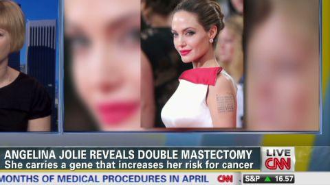 LEAD tapper jolie mastectomy hess_00002421.jpg
