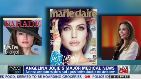 ac angelina jolie double mastectomy_00001002.jpg