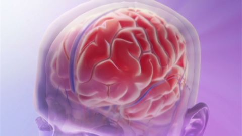 exp hm migraine awareness_00000201.jpg