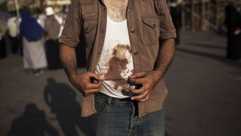 A Morsy supporter shows his bloodied shirt during a July 4 rally near the University of Cairo.