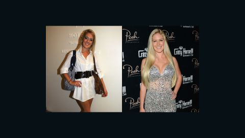 """Heidi Montag started with breast augmentation and a nose job in 2007 and eventually<a href=""""http://www.cnn.com/2010/SHOWBIZ/TV/01/13/heidi.montag.plastic.surgery/""""> opted for 10 surgeries</a> in order to change her look -- leaving her unrecognizable to many of her fans from the reality show """"The Hills."""""""