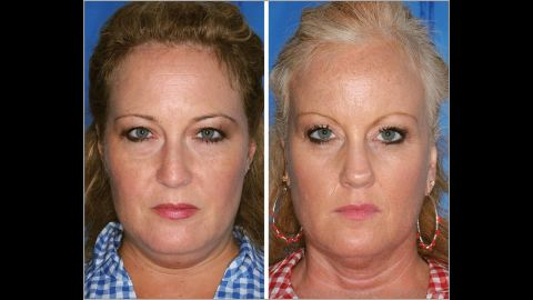 The twin on the right is a smoker; the twin on the left is a nonsmoker. Note the differences in the lines between the nose and mouth.