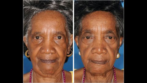 The twin on the left is a nonsmoker and the twin on the right smoked for 29 years. Note the differences in aging around the eyes.