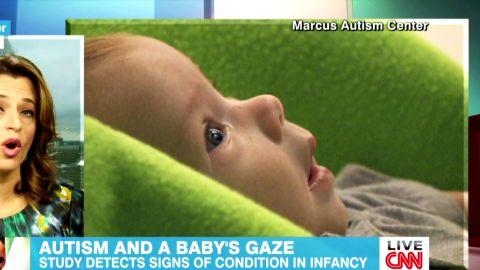 Autism and babies Cohen Newday _00013422.jpg