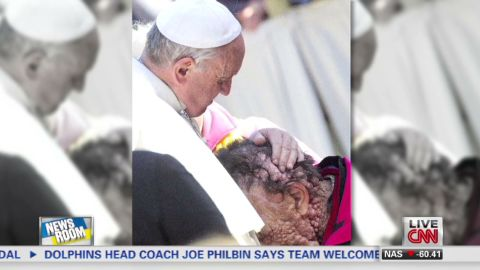 nr pope francis pic with disfigured man_00000311.jpg