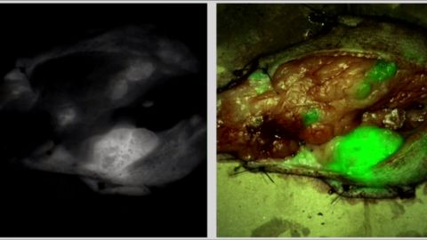 Tumor Paint attaches to cancerous cells and illuminates them so surgeons can distinguish them from healthy cells.