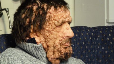 Vinicio Riva suffers from a non-infectious genetic disease, neurofibromatosis type 1. It has left him completely covered, from head to toe, with growths, swellings and itchy sores. His mother suffered from the same illness before she died, and his sister has a milder version of it.